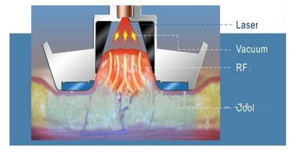 Công nghệ giảm béo quang đông cryolipolysis
