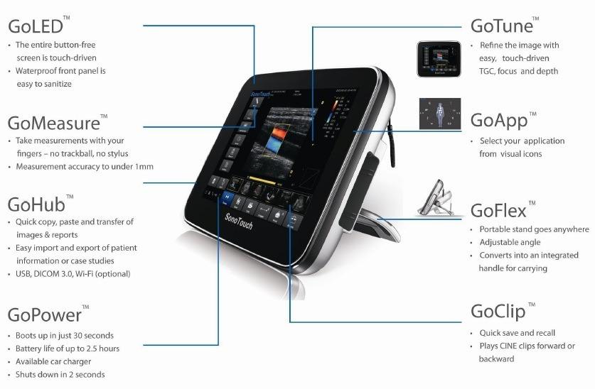 Máy siêu âm màu cầm tay Sono Touch