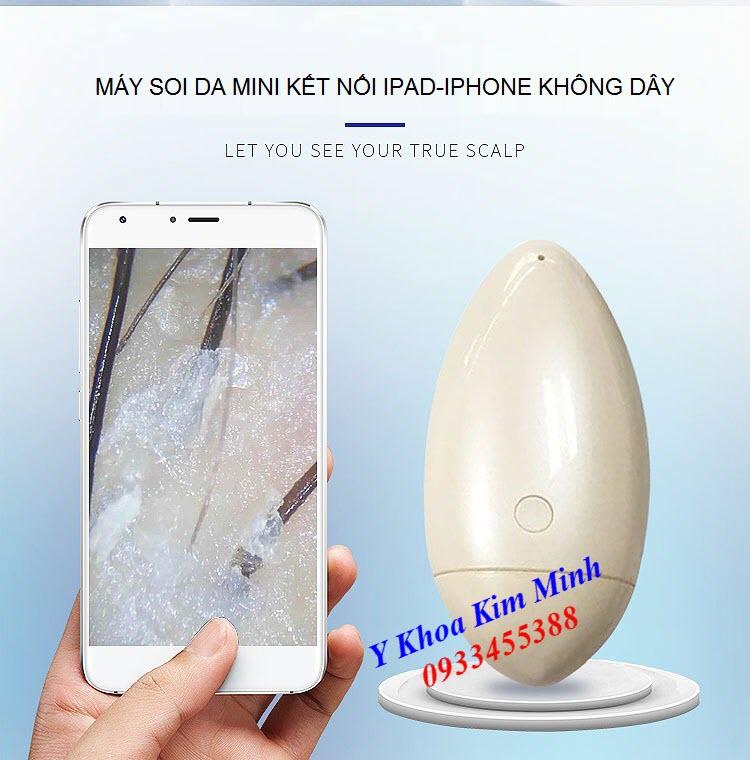 Máy soi da kết nốp ipad iphone không dây bán tại Tp Hồ Chí Minh - Y Khoa Kim Minh 0933455388