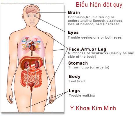 bệnh đột quỵ và cách nhận biết