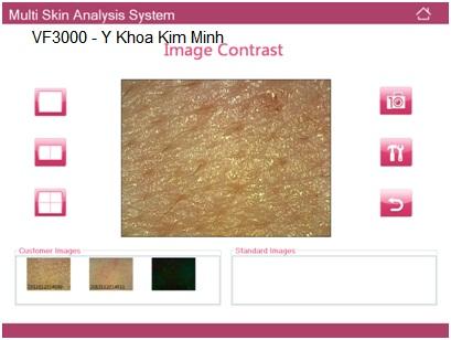 Ban may kiem tra da co phan mem phan tich VF3000 Y Khoa Kim Minh