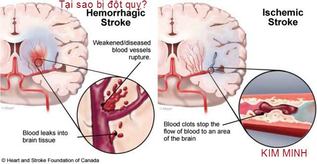 Đột quỵ, các triệu chứng và phòng chống đột quỵ