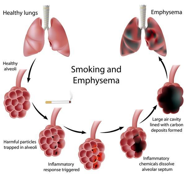 COPD bệnh tắt nghẽn phổi mãn tính