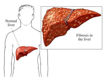 ung thư gan do nhiễm siêu vi và 6 loại ung thư phổ biến