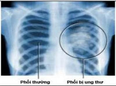 Ung thư phổi và 6 loại ung thư phổ biến nhất