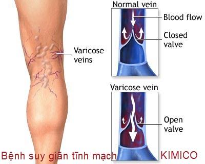 bệnh suy giãn tĩnh mạch chân