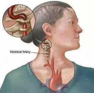 Huyết áp cao-Tai biến mạch máu não Xin nhớ ba chữ: C.N.G.