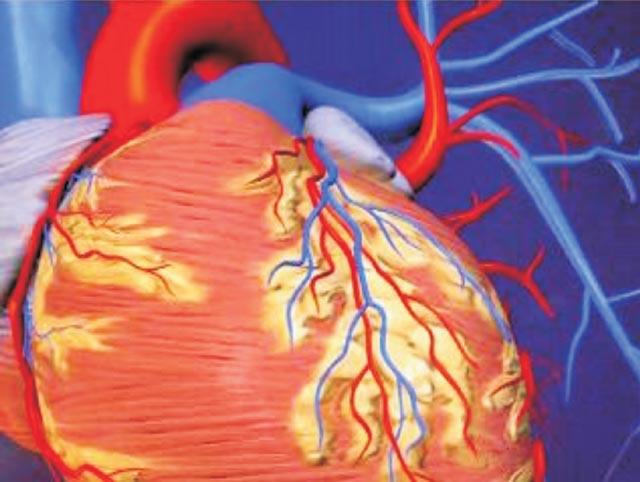 Máy đo huyết áp bệnh đột quỵ tai biến nhồi máu cơ tim