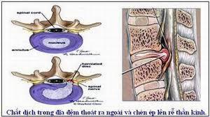 Giường kéo giãn cột sống và phương pháp điều trị hiệu quả