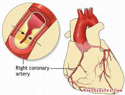 Bệnh tim mạch vành là gì