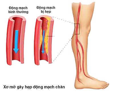 Bệnh động mạch ngoại biên không thể xem thường