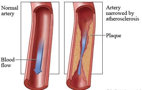 Xơ vữa động mạch và các căn bệnh có liên quan