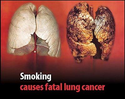 6 bộ phận cơ thể có nguy cơ bị ung thư cao nhất