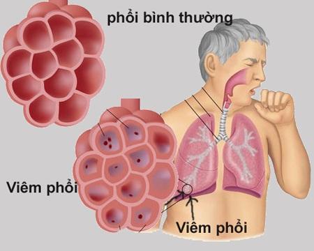 Bệnh tắc nghẽn phổi mạn tính COPD của người già