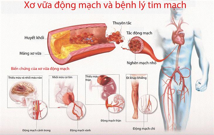 Đau ngực -nguy cơ bệnh nhồi máu cơ tim