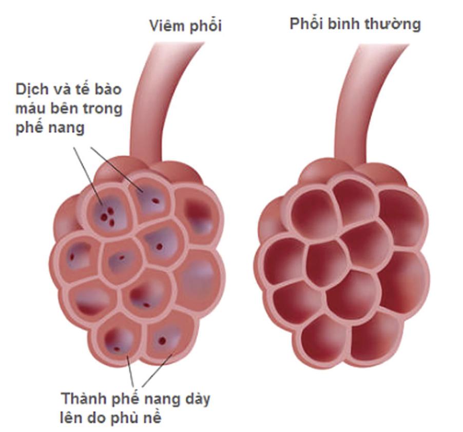 Viêm phổi ở trẻ em và người già