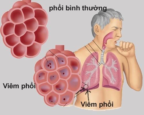 Bệnh viêm màng phổi