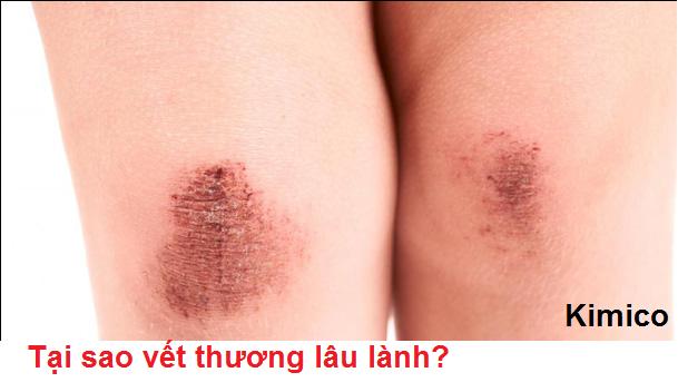 Vết thương lâu lành, tại sao?