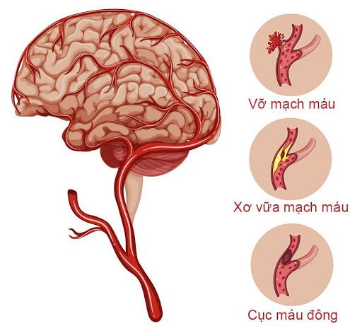 Xuất huyết não là một loại đột quỵ