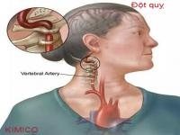 Đột quỵ -Nguyên nhân và cách phòng ngừa