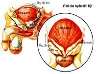 Chữa trị viêm tuyến tiền liệt, bàng quang và u xơ tử cung