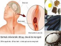 Bài thuốc chữa tai biến đột quỵ chữa tại nhà