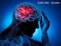 Nhồi máu não gây đột quỵ vào buổi sáng, cảnh giác thực phẩm và cách phát hiện