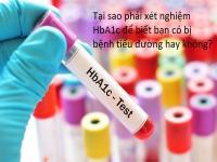 HbA1c là gì? Tại sao phải xét nghiệm HbA1c của người bệnh tiểu đường