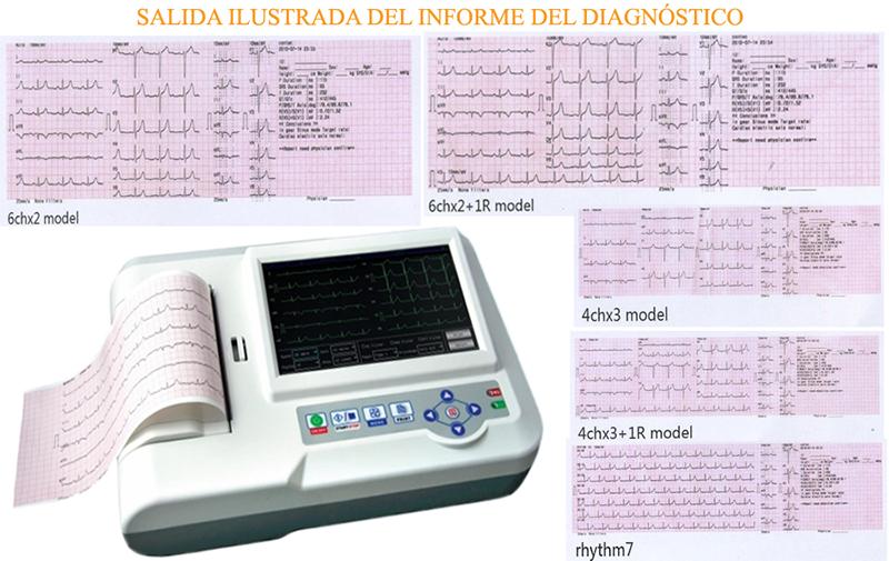 MÁY ĐIỆN TIM 6 CẦN CONTEC ECG 600G