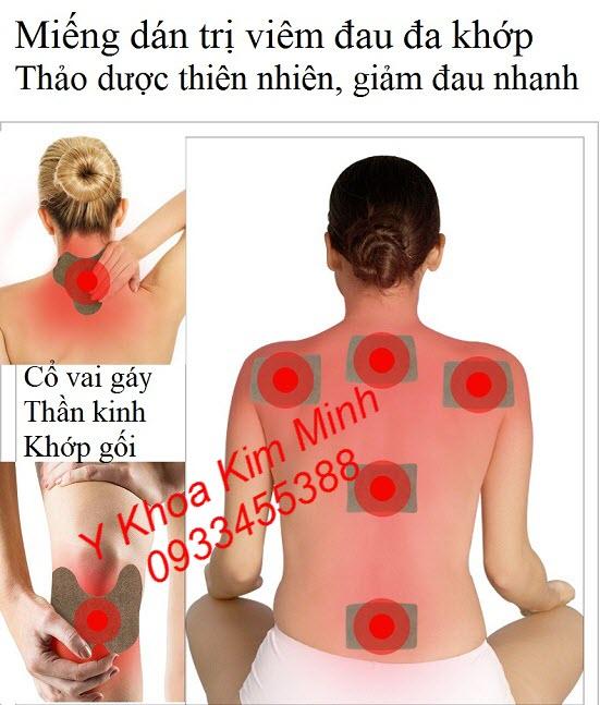Miếng dán trị viêm đau đa khớp