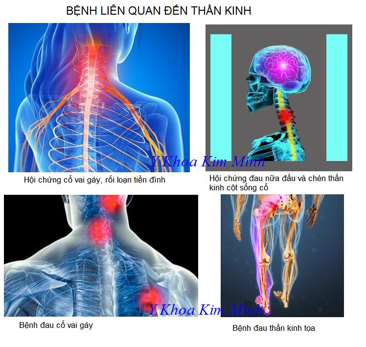 Benh dau cot song, xuong khop, day than kinh | dau Que Son - Y Khoa Kim Minh 0933455388
