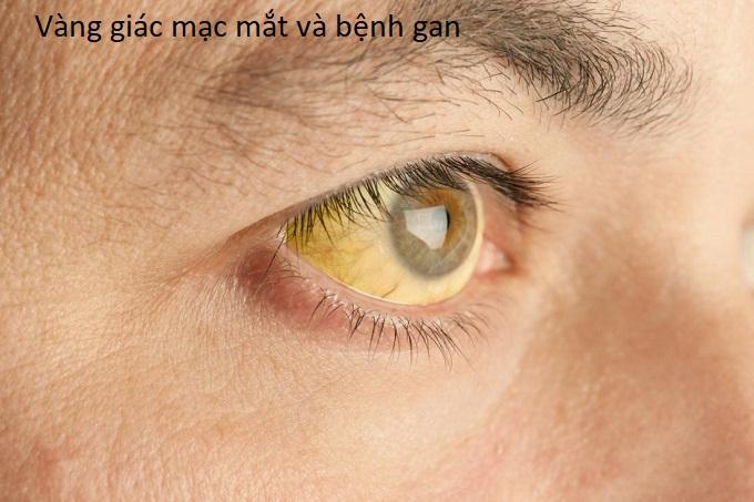 Vàng giác mạc mắt, vàng võng mạc có liên quan đến bệnh gan - Y khoa Kim Minh