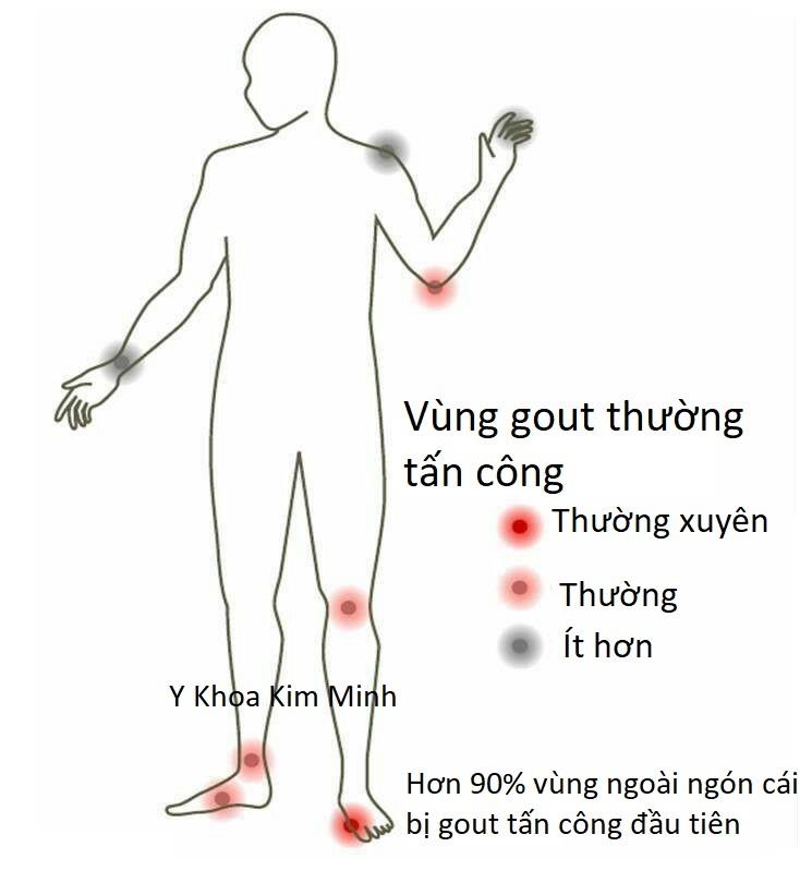 Nguyên nhân và biểu hiện bệnh gout như thế nào?