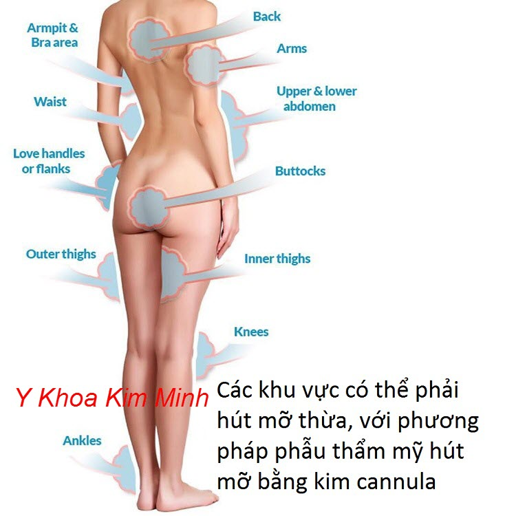 Các vùng trên cơ thể bị mỡ thừa nhiều có thể dùng kim cannula hút mỡ