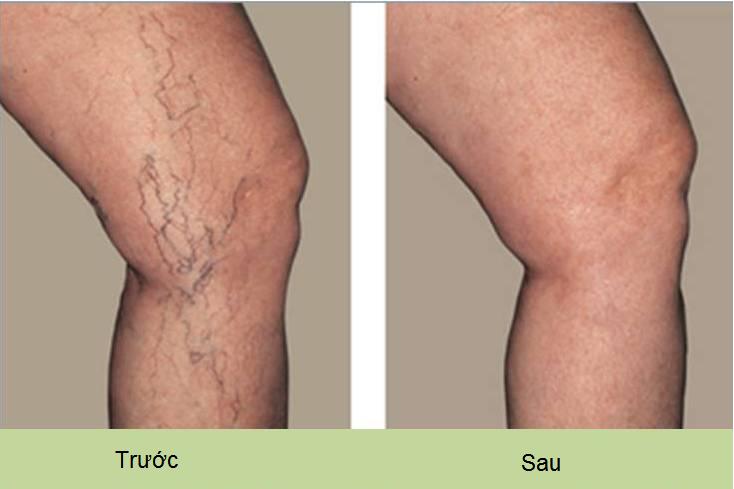 Noi chua benh gian tinh mach chan | treatment vein in Viet Nam - Y khoa Kim Minh 0933455388