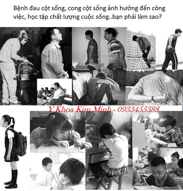 Chua benh dau cot song, cong cot song o dau tai Tp Ho Chi Minh hieu qua - Y khoa Kim Minh