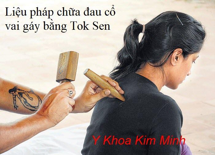 Trị đau cổ vai gáy bằng bộ gõ Tok Sen - Y Khoa Kim Minh