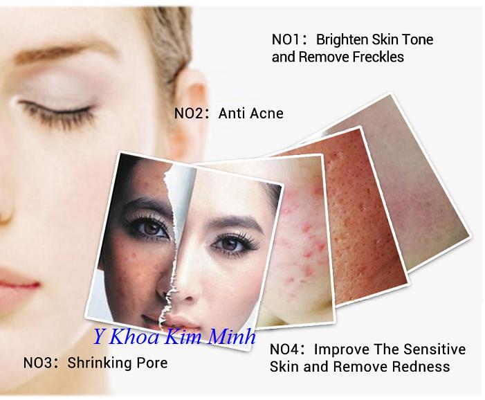 Công dụng làm sáng da, điều trị sẹo mụn, ngăn hinh thành mụn trên da của EGF Lanbena - Y Khoa Kim Minh