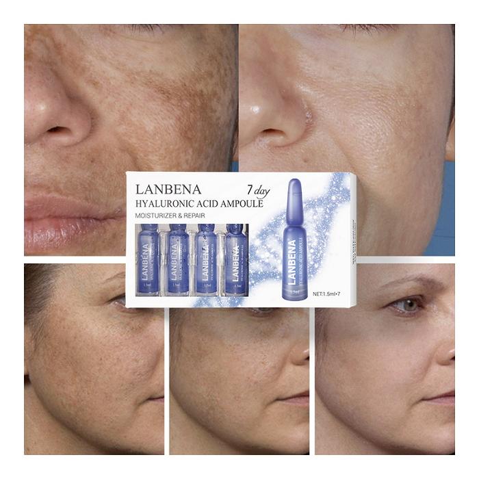 Công dụng chữa thâm nám, giữ ẩm, căng bóng da của huyết thanh HA Lanbena Ampoule - Y khoa Kim Minh