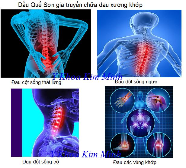 Dầu Quế Sơn gia truyền chữa viêm xương khớp bán tại Tp Hồ Chí Minh - Y Khoa Kim Minh 0933455388