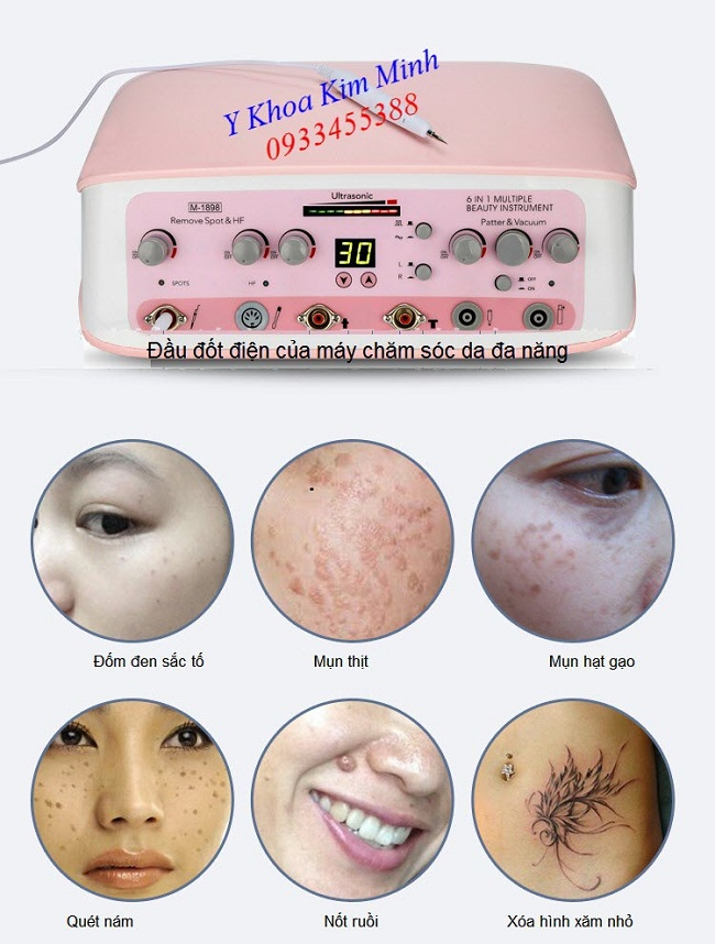 Đầu đốt điện của máy chăm sóc da mặt đa năng - Y Khoa Kim Minh