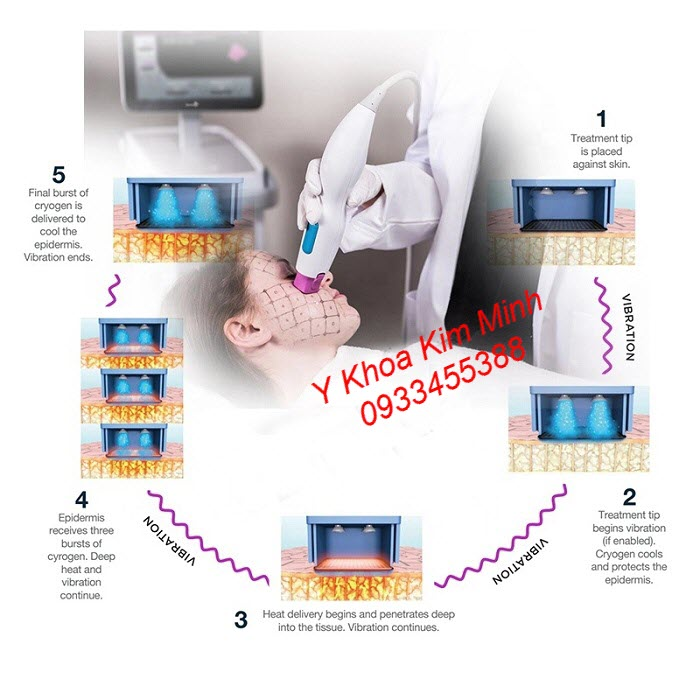 Điều trị da lão hoá bằng công nghệ RF Thermagic FLX A-332 - Y khoa Kim Minh