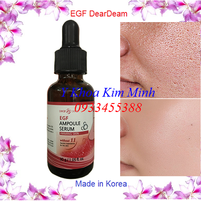 Huyết thanh tăng trưởng biểu bì làm liền sẹo, mịn da EGF, giảm tổn thương sau lăn kim - Y khoa Kim Minh