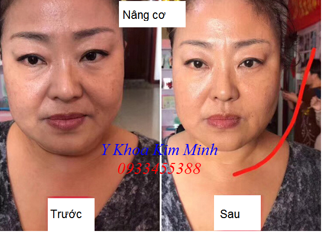 GPT Gold Protein tế bào gốc sợi vàng nâng cơ mặt, trẻ hóa da cấp tốc sau 5 phút - Y khoa Kim Minh 0933455388