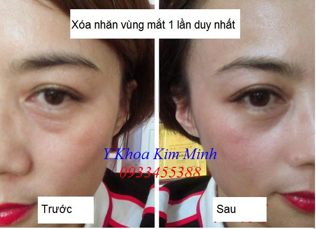 Tế bào gốc sợi vàng GPT xóa tan nhăn da vùng mắt, bọng mắt - Y khoa Kim Minh 0933455388