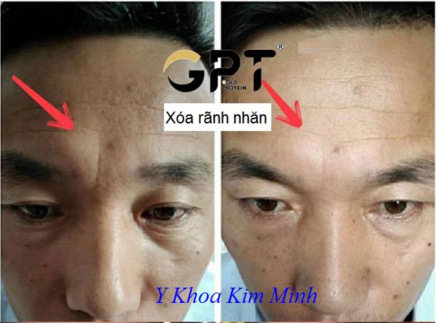 Tế bào gốc vàng GPT Gold Protein xóa nhăn da vùng trán sau 5 phút - Y Khoa Kim Minh 0933455388
