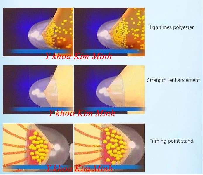 Cách dùng máy hút ngực đa năng FX-24B - Y khoa Kim Minh
