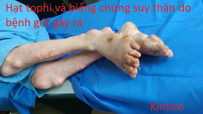 Hạt tophi của bệnh gout gây biến chứng suy thận - Y khoa Kim Minh