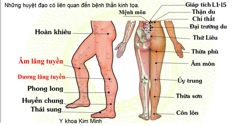 Đai DT-350 chữa bệnh có liên quan đến bệnh thần kinh tọa - Y khoa Kim Minh 0933455388