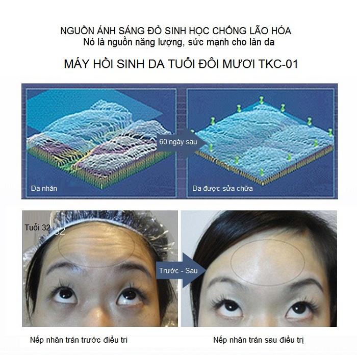 Máy hấp trắng hồi sinh da tuôi đôi mươi bán tại Tp Hồ Chí Minh - Y Khoa Kim Minh
